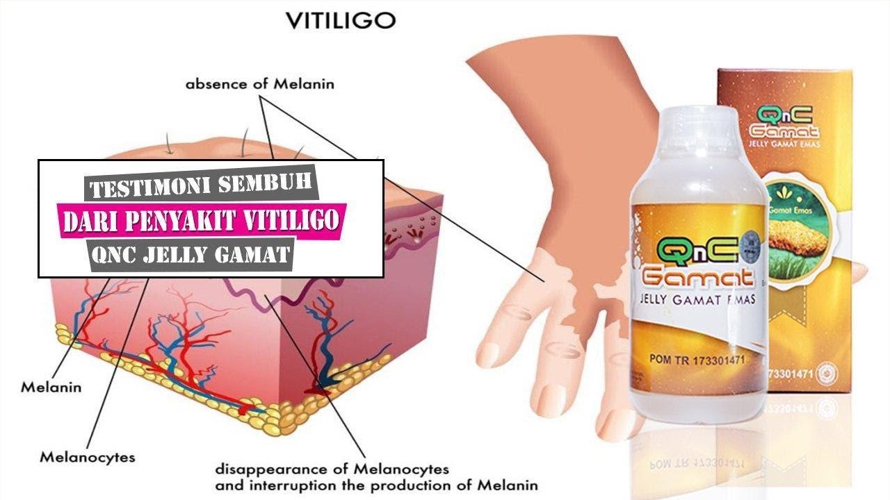 testimoni kesmbuhan QnC jelly gamat dari penyakit vitiligo ...