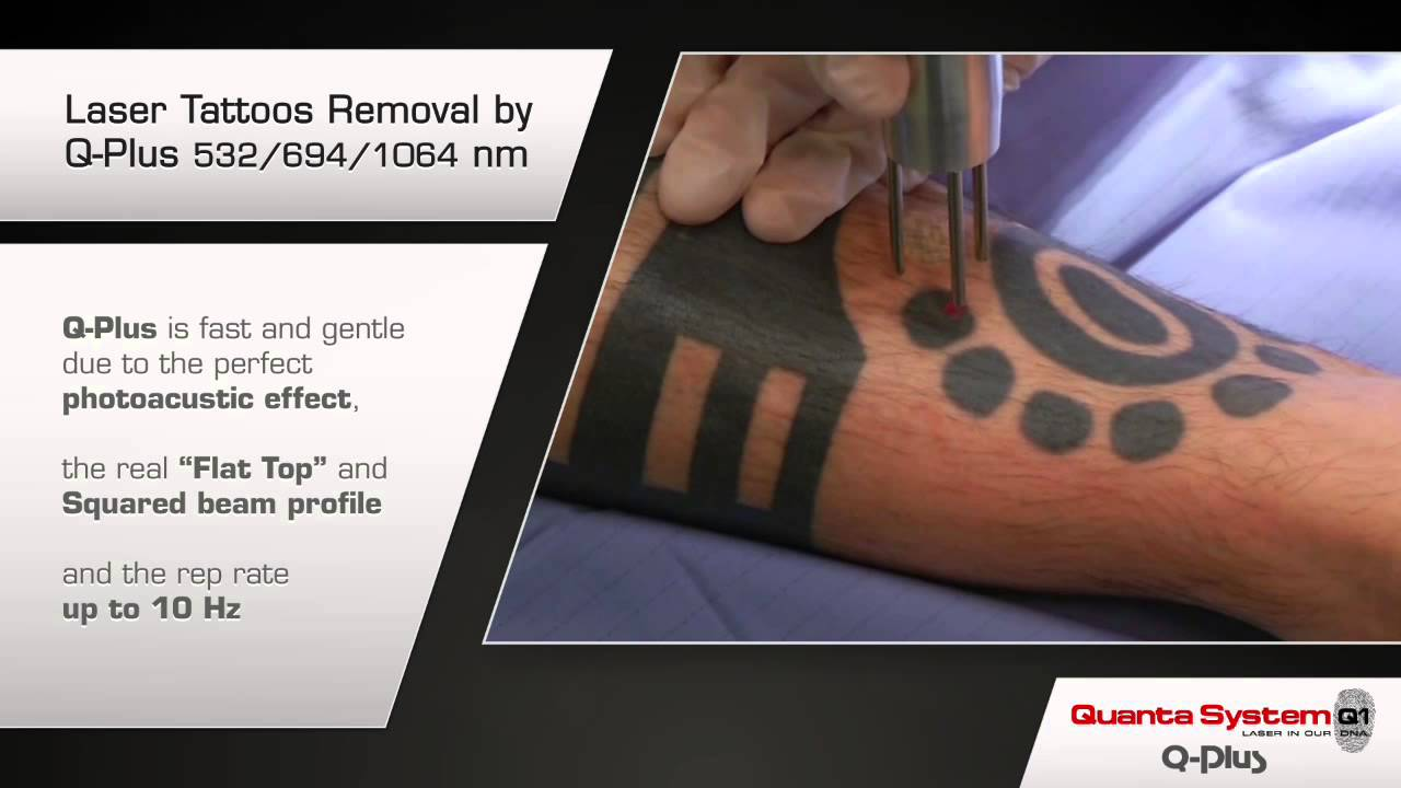 How to remove tattoo, Fast! - YouTube