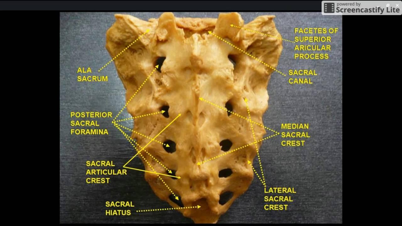 Pelvis 103 Anatomy Sacrum Youtube