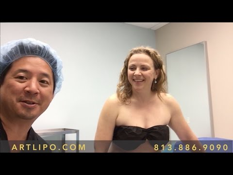 Smartlipo Vaser Lipo Knees Amp Thighs Before Amp After Ph