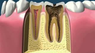 Лечение зубов (полный курс)(, 2015-11-09T19:14:58.000Z)