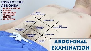 Abdominal Examination - OSCE Guide (New Release)