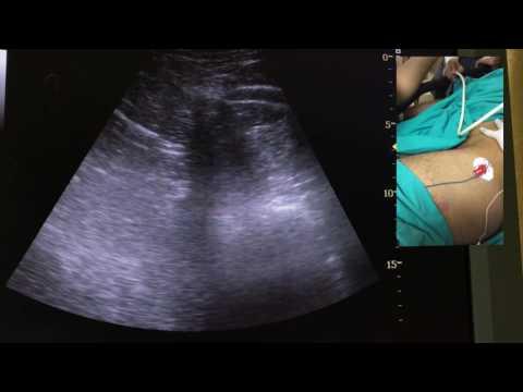 Ultrason eşliğinde Lomber Pleksus Bloğu (Ultrasound Guided Lumbar Plexus Block)