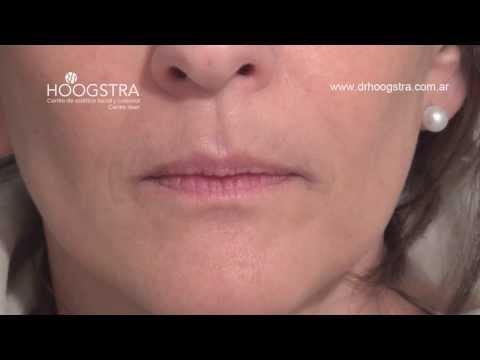 Relleno de Labios y Surcos Nasolabiales (13009)