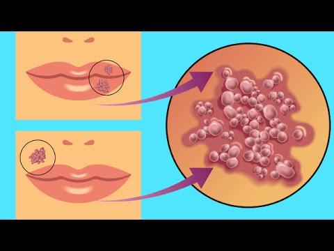 Rapido como labial cura un se herpes