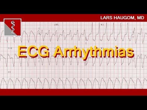 ECG Arrhythmias