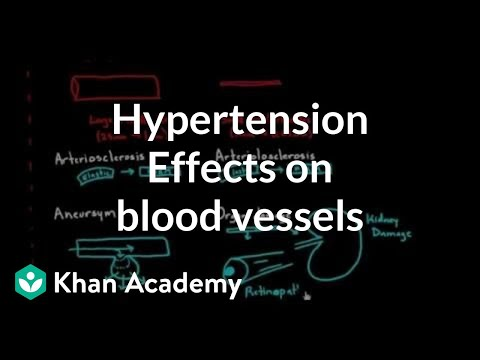 Hypertension effects on the blood vessels