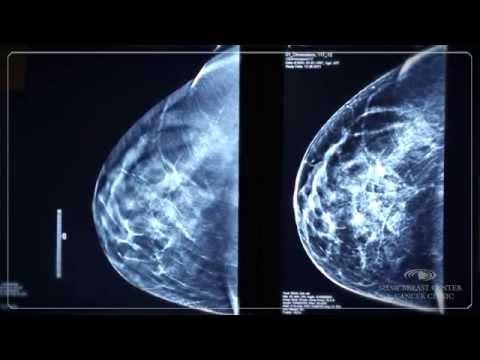 Poliklinika Harni - Mamografija svake dvije godine za žene dobi 50-74 godine