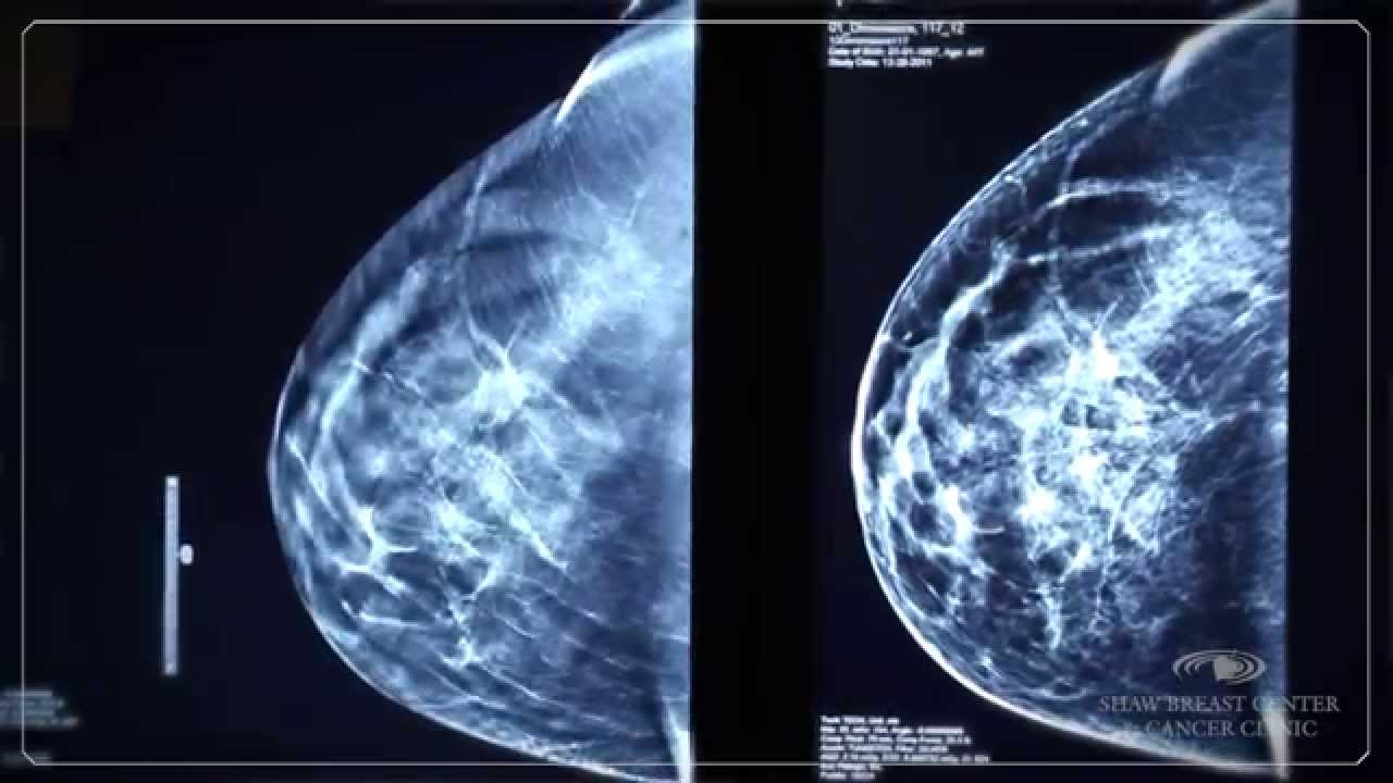 3d mammogram machine