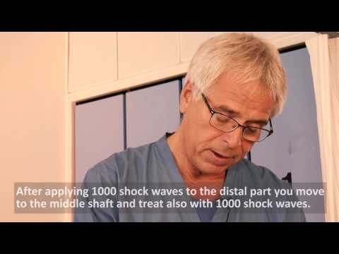 Erectile Dysfunction ED Storz Focused Shockwave Therapy ESWT Application Professor Lund thumbnail