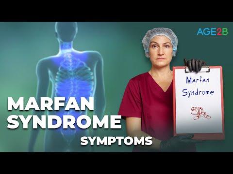 Marfan Syndrome. Symptoms