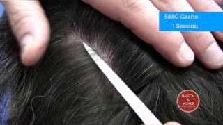hair transplant results scar focus 04 5880