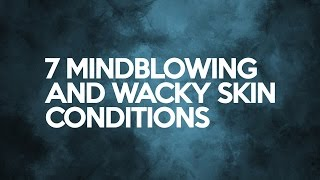 7 Mindblowing and Wacky Skin Conditions