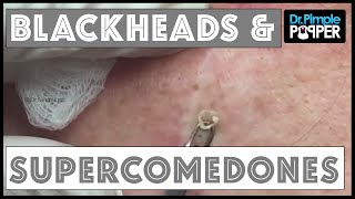 Blackhead Supercomedone Extractions: Dr Pimple Popper