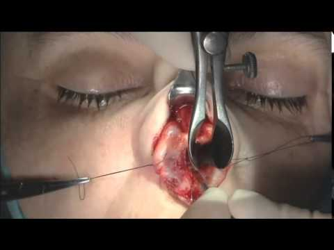 Dr. Steven Pearlman Part 5 - Septum Dissection