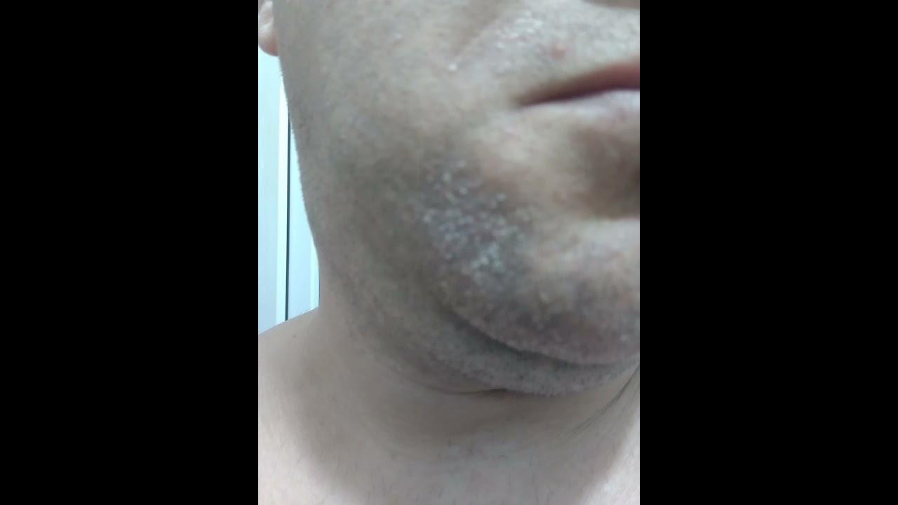 mâncărime pe piele cu varicoză