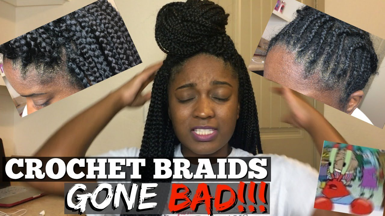 Crochet braids gone bad infection allergic reaction youtube pmusecretfo Choice Image