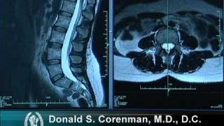 How to Read a MRI of the Normal Lumbar Spine | Lower-Back | Vail Spine Specialist