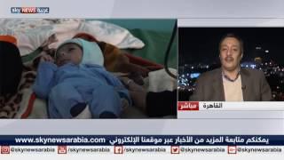 عشرات آلاف الأطفال في تعز اليمنية يعانون سوء التغذية