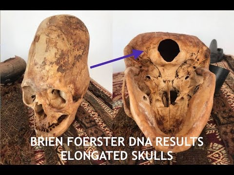 Elongated Skulls, DNA Results, Nephilim & Lost Ancient High Technology Artifact, Brien Foerster