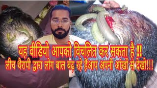 Leech Hair Grow Therapy || Log Kya Kya kar rahe hai Hair ke liye