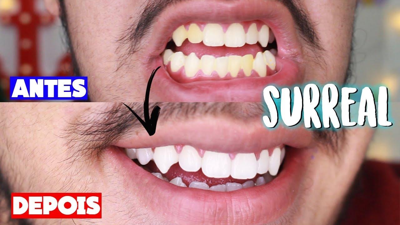 Melhores Receitas Caseiras Para Clarear Os Dentes Em 1 Minuto Youtube