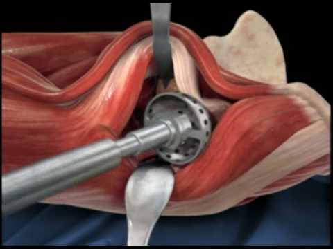 Medical 3D Animation and Simulation