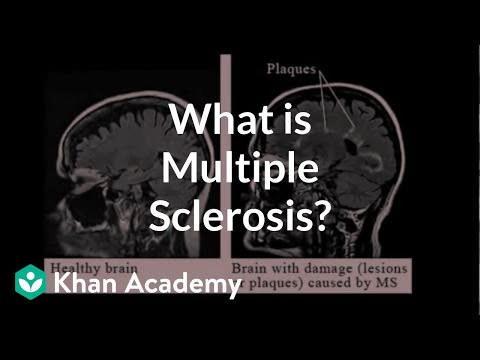 What is multiple sclerosis? | Nervous system diseases | NCLEX-RN | Khan Academy