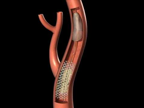Protected Carotid Stenting