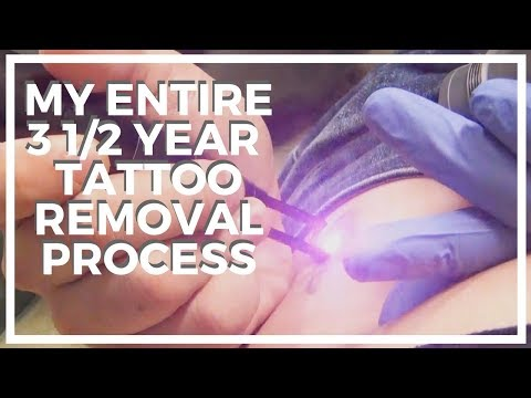 My Tattoo Removal Experience ♥ 3 1/2 Year Process With Serenity Medspa, and Laseraway