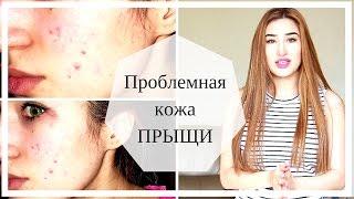 Как побороть ПРЫЩИ ДЕШЕВО 100% Проблемная кожа