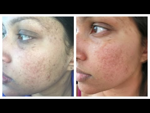 R+F REVERSE DEMO & WEEK 1 RESULTS | It's Altogether Lovely