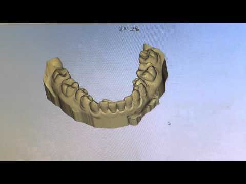 ONEDAY DENTISTRY - The digital process of making clear aligners using the 3D printer