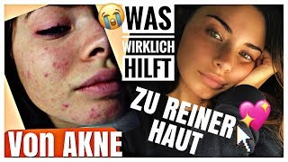How I Cured My Acne/ Akne bekämpfen