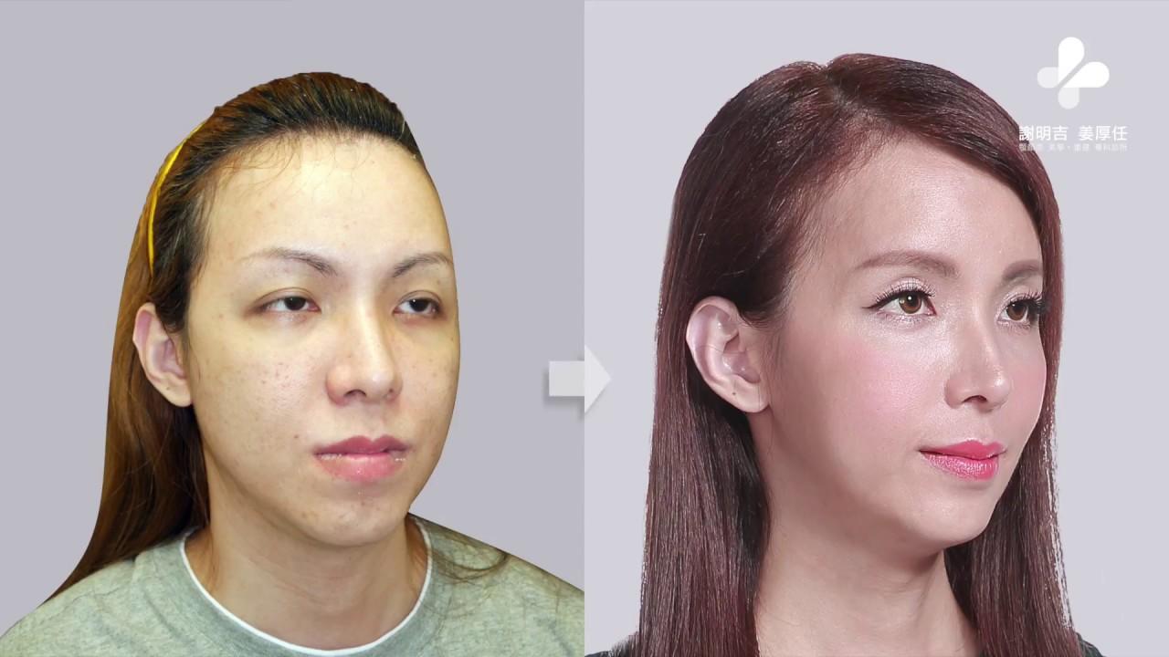 Dr. Adrian M. Hsieh|FFS (Facial Feminization Surgery ...