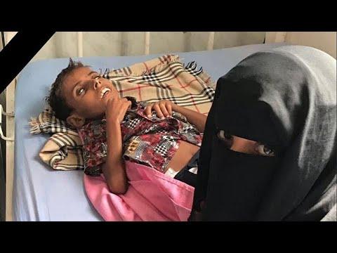 اليمن: بعد أمل حسين.. آدم علي يقضي بسبب سوء التغذية ونعي أممي -إلى جنات الخلد يا آدم-…  - 22:53-2018 / 11 / 8
