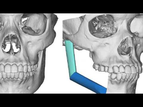 Department of Oral and Maxillofacial Surgery University of Maryland School of Dentistry