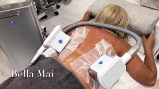 2 Areas Back Fat Freezing Treatment