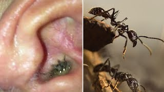 10 Creatures Found Living Inside People