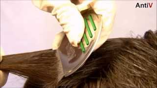 Как избавиться от гнид в волосах: мертвых, видео-инструкция по избавлению от вшей своими руками, фото и цена