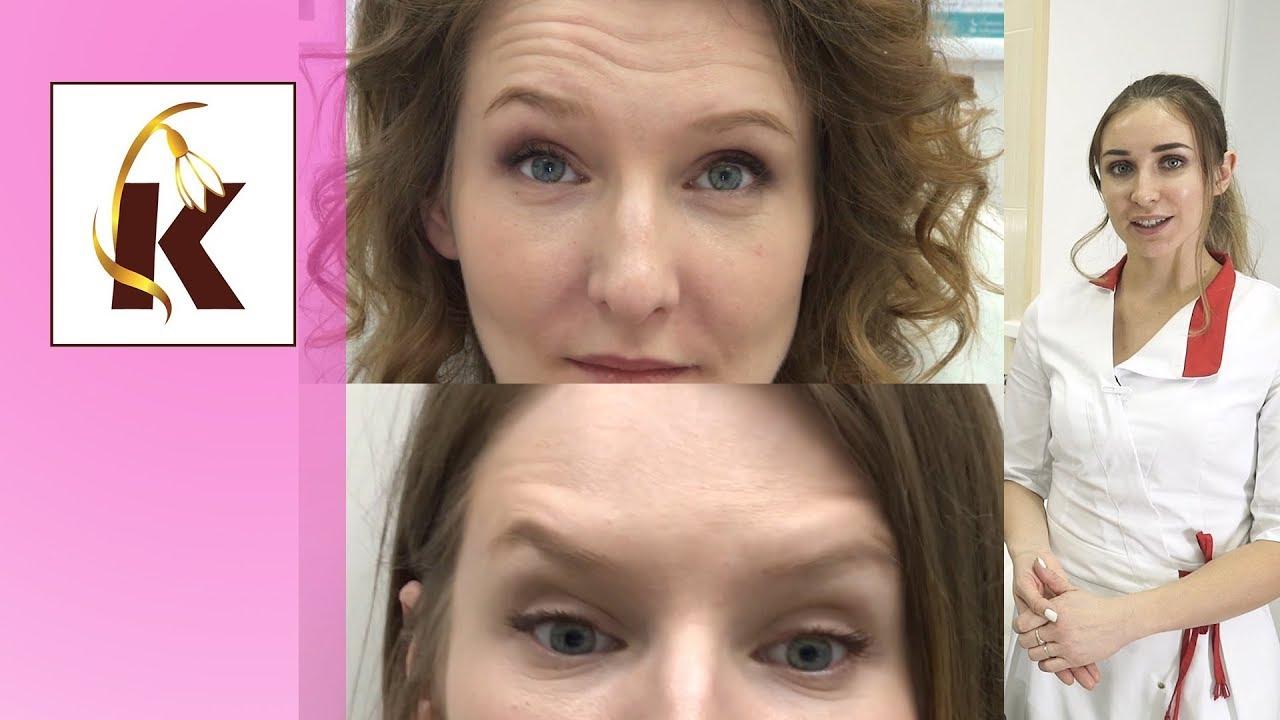 Ботокс от морщин, до и после - самая летня процедура