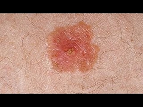 Skin Cancer on the Rise in U S  Kids - 2017 - YouTube