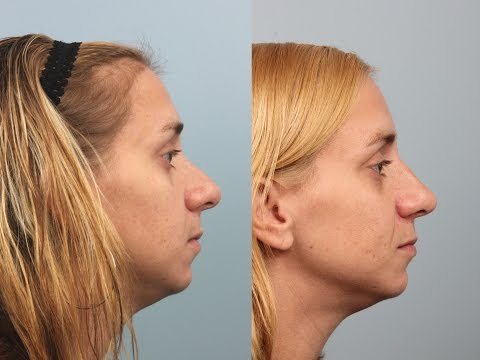 Female Revision Rhinoplasty by Dr. Edwin Williams
