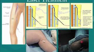Vein Circulation Problems, Diagnosis, & Management