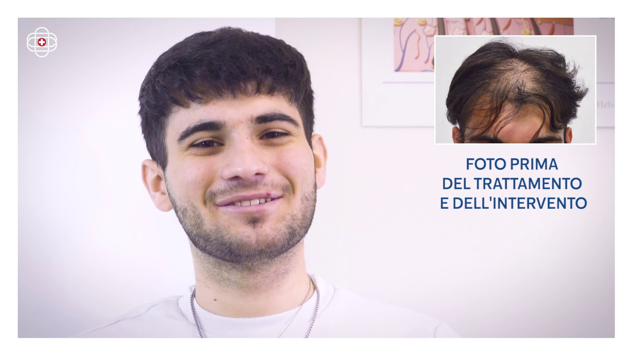 ISTITUTO HELVETICO SANDERS - 2700 GRAFTS FUE - YouTube