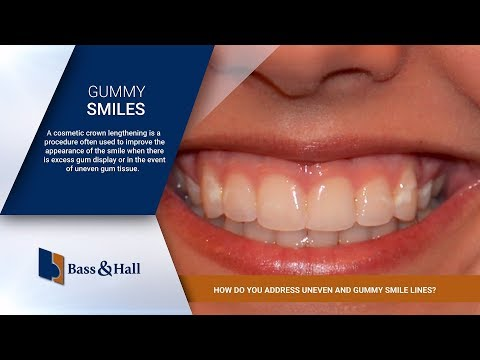 How Do You Address Uneven and Gummy Smile Lines? | Bass & Hall Dental Implant & Periodontal Partners