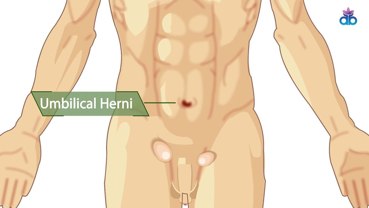 Hernia Surgery Centre Gurgaon | Best Hernia Surgeons