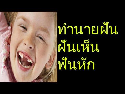 ฝันเห็นฟันหัก (พร้อมเลขเด็ด)