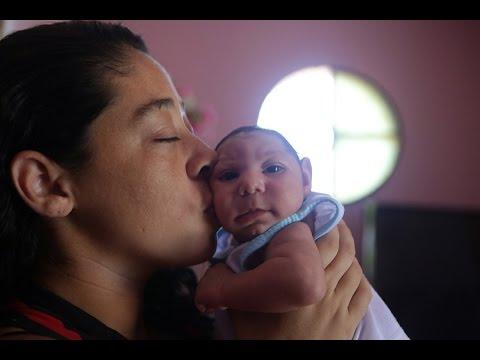 Poliklinika Harni - Mikrocefalija i kožni osip nisu uvijek prisutni kod kongenitalnog Zika sindroma