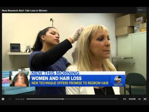 New Research Alert Hair Loss in Women Video   ABC News